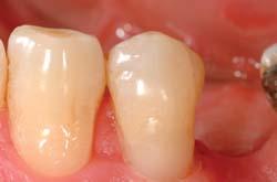 freiliegender zahnhals versiegeln